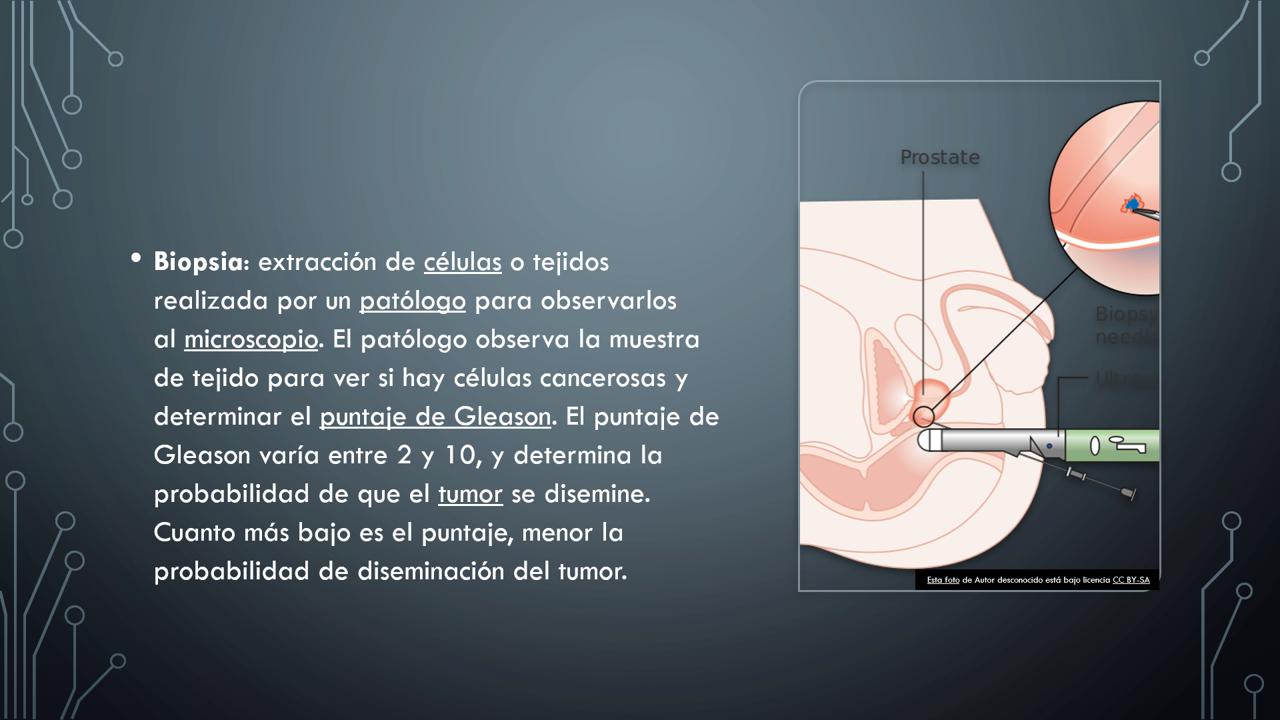 puntajes de análisis de sangre para cáncer de próstata