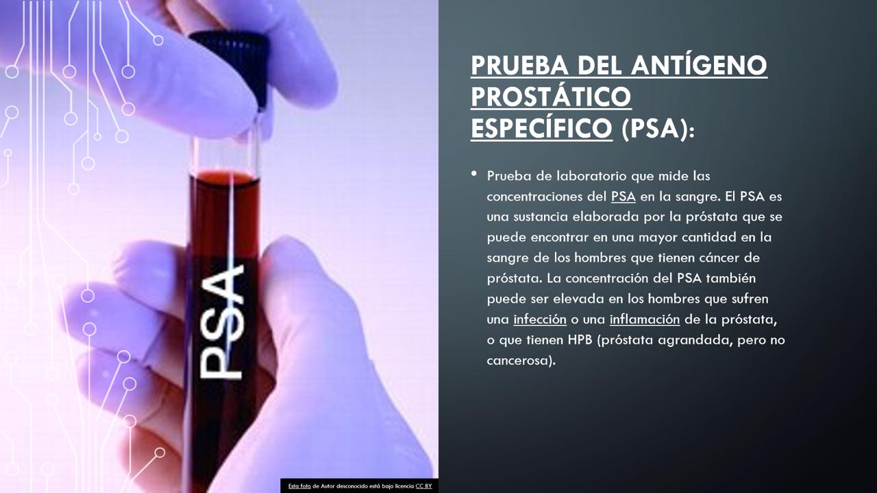 puedes eyacular del examen de próstata